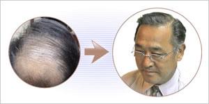 薄毛の悩みを解消したい男性
